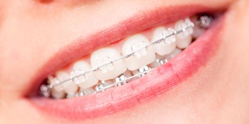 Braces in Langley