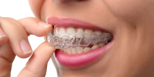 Invisalign in Langley